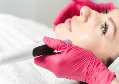 Microneedling_the_most_beautiful