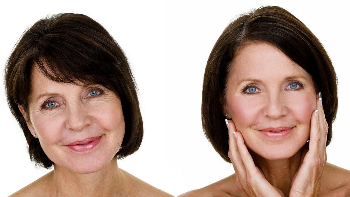 Schönheitschirurgie im kosmetikinstitut